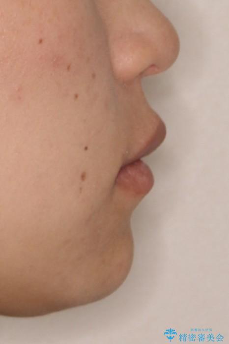 表側のワイヤー矯正 口元の改善をはかる抜歯矯正の治療後(顔貌)