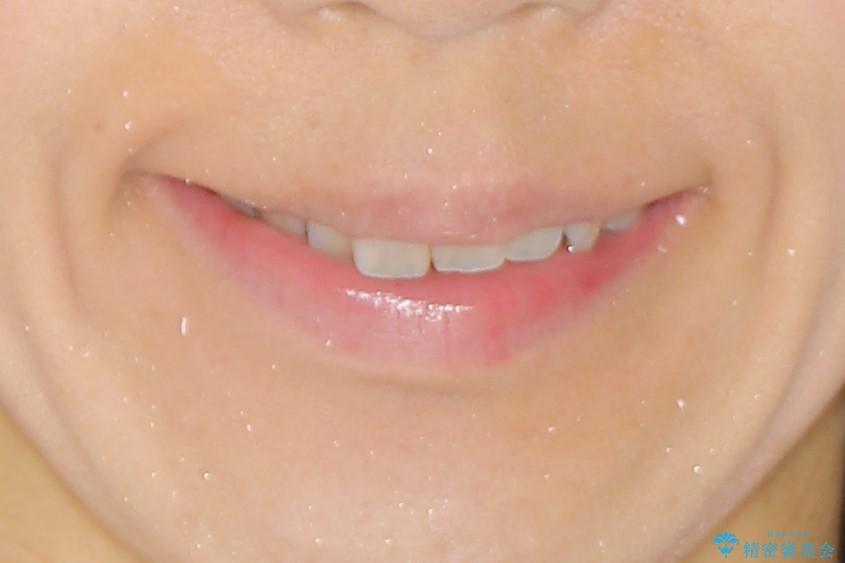 ハーフリンガル ワイヤー矯正 出っ歯の矯正治療の治療前(顔貌)