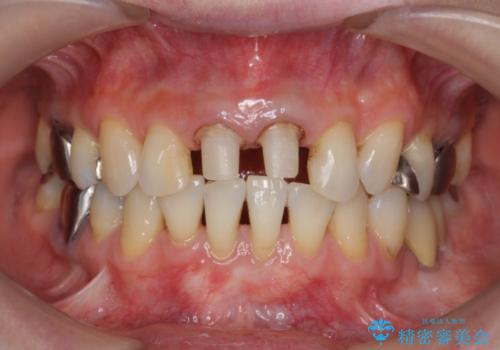 [前歯 オールセラミック治療]  前歯に天然歯のような透明感を創るの治療中