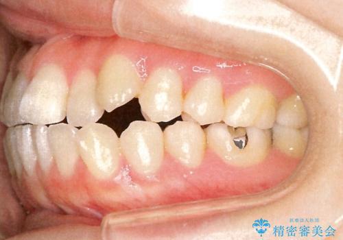 表側のワイヤー矯正 口元の改善をはかる抜歯矯正の治療前