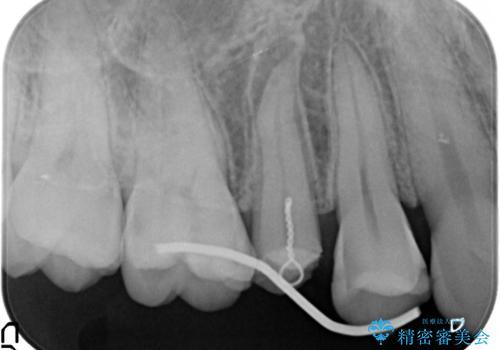 歯が割れたと来院。エクストリュージョンから歯冠修復まで。の治療中