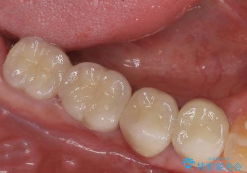 奥歯の欠損 インプラントによる機能回復の治療後