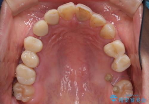 全顎的に多発した虫歯治療の治療中