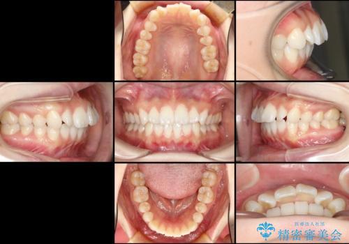 前歯の出っ歯とでこぼこを抜歯矯正で改善 目立たないワイヤー矯正の治療前