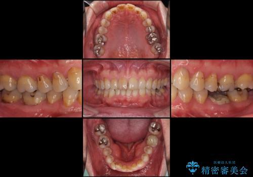 奥歯の割れてしまった歯 ストローマンインプラントによる咬合回復の治療前