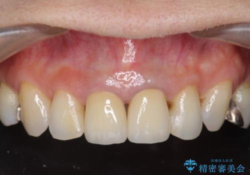 [前歯 オールセラミック治療]  前歯に天然歯のような透明感を創るの治療後