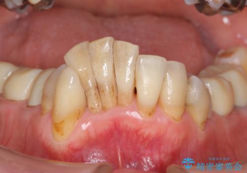 ワイヤーとインビザライン を用いた前歯 小矯正治療の症例 治療前