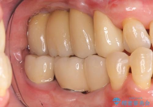 全顎歯周病治療の治療後