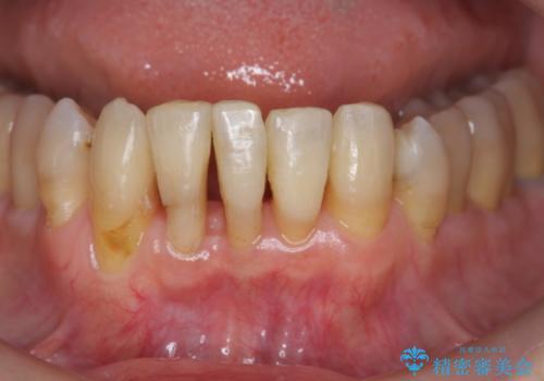 ワイヤーとインビザライン を用いた前歯 小矯正治療の症例 治療後