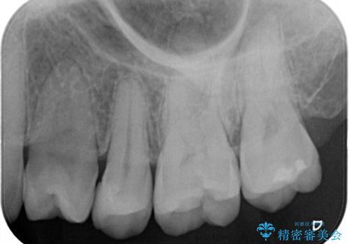 左上奥歯 銀のつめものがとれた セラミックインレーで白くの治療前