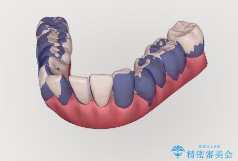 ワイヤーとインビザライン を用いた前歯 小矯正治療