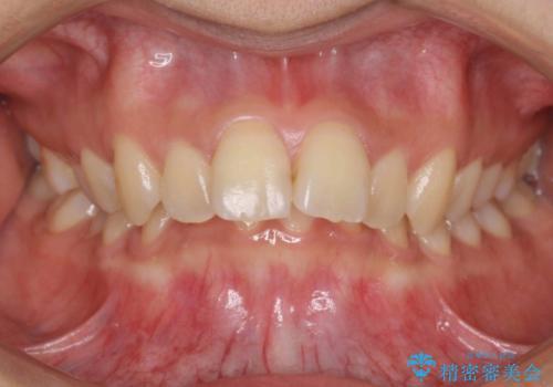 出っ歯・過蓋咬合 奥歯を後ろに下げて非抜歯で治療の症例 治療前