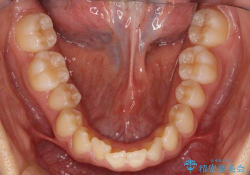 出っ歯・過蓋咬合 奥歯を後ろに下げて非抜歯で治療の治療前