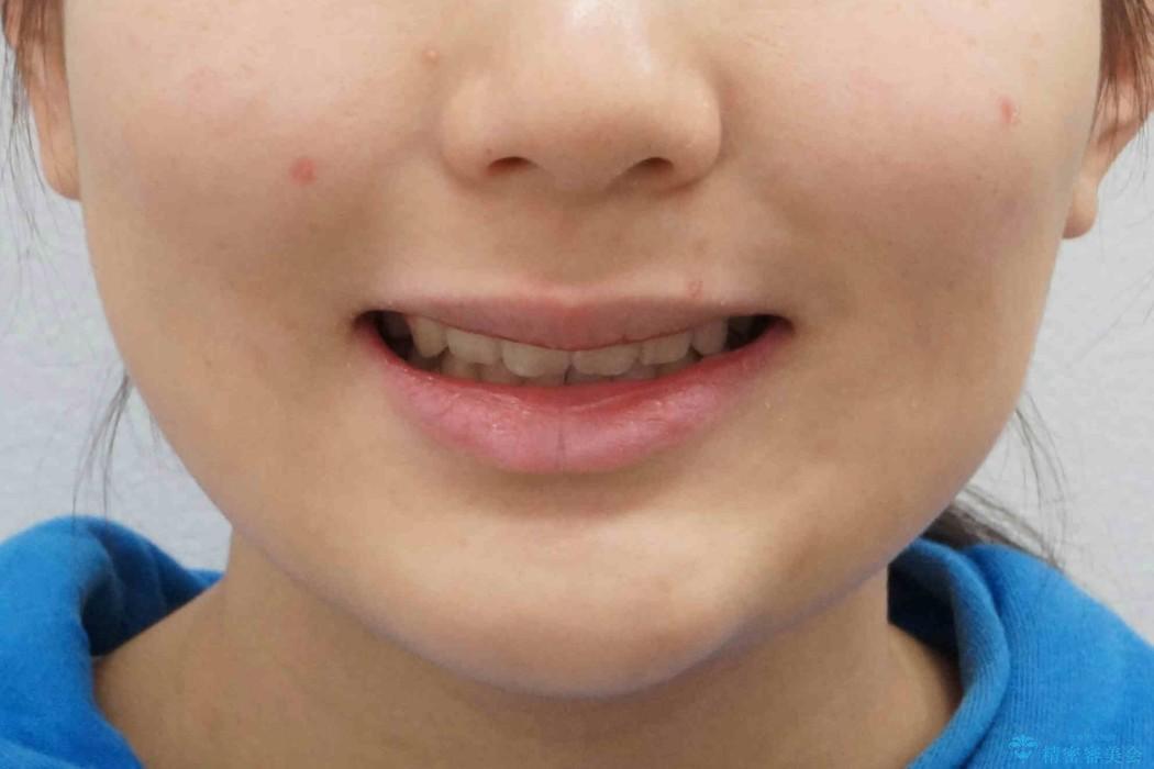 10代女子 口元を引っ込めたい の治療後(顔貌)