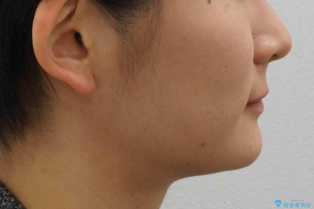 出っ歯・過蓋咬合 奥歯を後ろに下げて非抜歯で治療の治療後(顔貌)