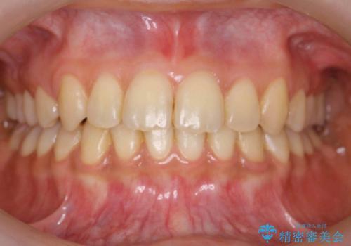 出っ歯・過蓋咬合 奥歯を後ろに下げて非抜歯で治療の症例 治療後