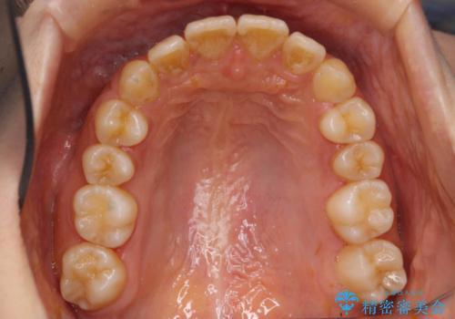 出っ歯・過蓋咬合 奥歯を後ろに下げて非抜歯で治療の治療後