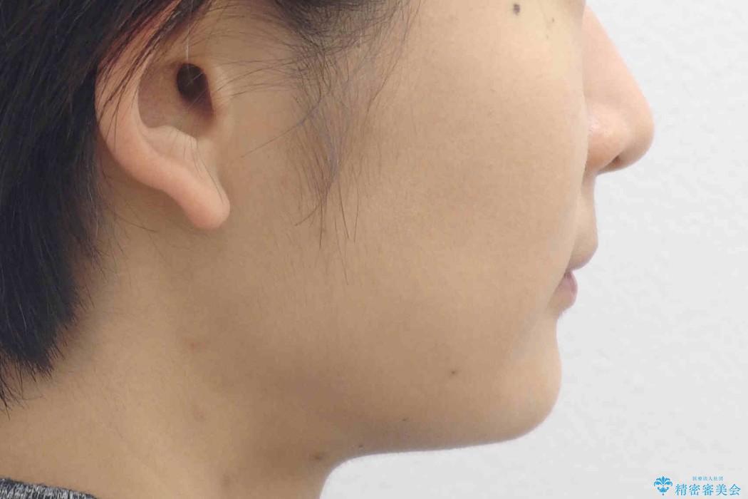 出っ歯・過蓋咬合 奥歯を後ろに下げて非抜歯で治療の治療前(顔貌)
