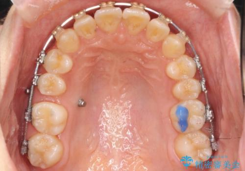 出っ歯・過蓋咬合 奥歯を後ろに下げて非抜歯で治療の治療中