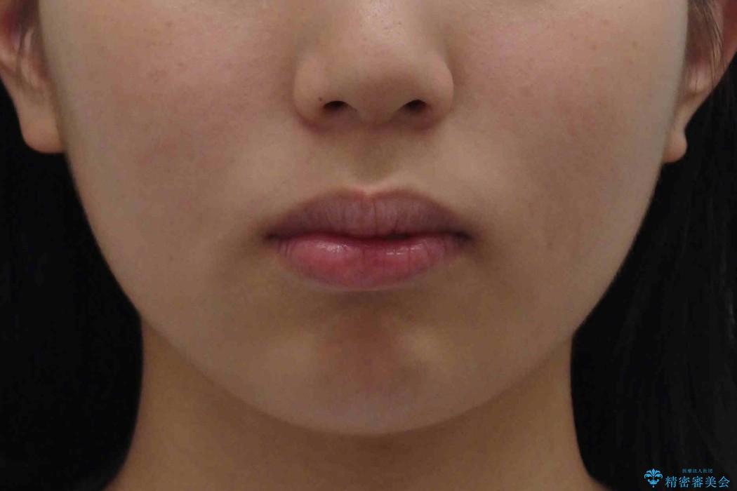 10代女子 口元を引っ込めたい の治療前(顔貌)
