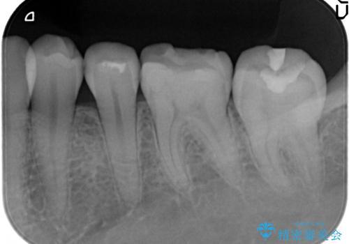 下顎小臼歯 セラミックインレー修復の治療前