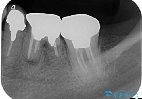 ショートインプラントによる奥歯の咬み合わせの回復治療の治療前