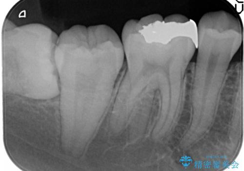 銀歯を白いセラミックに変えたいの治療前