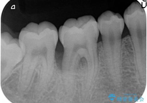 侵襲性歯周炎によるシビアな骨欠損 再生治療で回復の治療前