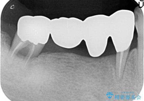 奥歯で噛めない インプラントとセラミックによる咬み合わせの回復の治療前