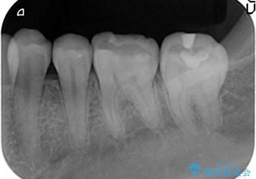 下顎小臼歯 セラミックインレー修復の治療後