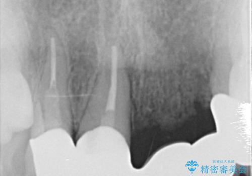 前歯のセラミックブリッジ 長すぎる前歯を部分矯正で修正するの治療前