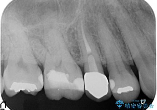 保険の白い歯が割れた。の治療後