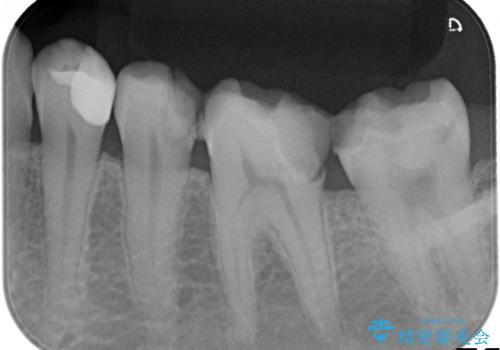 劣化した詰め物と虫歯の治療の治療前