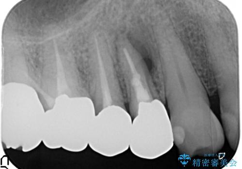 オールセラミッククラウン 歯根破折⇒抜歯⇒ブリッジによる補綴の治療前