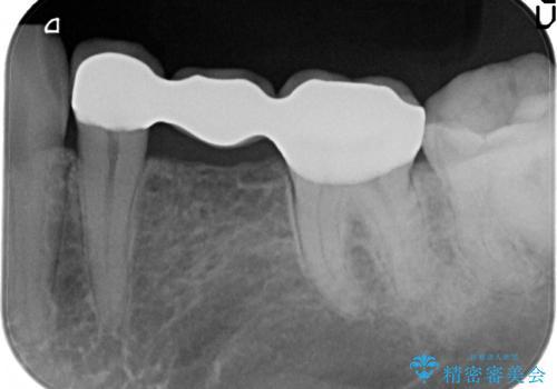 奥歯のブリッジをセラミックにやりかえたいの治療後