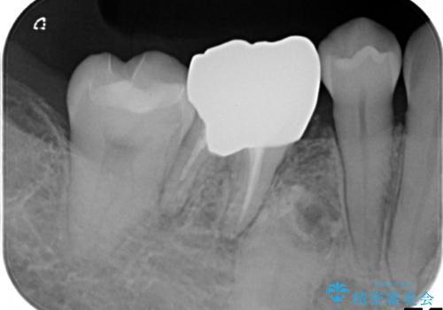 銀歯のやり直し セラミックで奥歯をきれいにの治療後