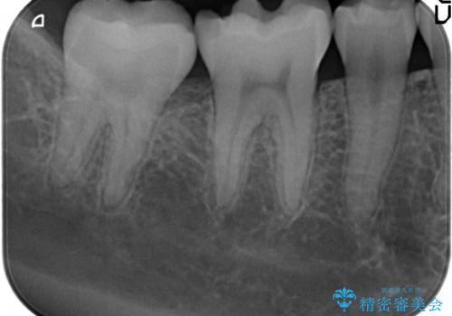 歯が欠けた セラミックインレー修復の治療前