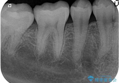 歯が欠けた セラミックインレー修復の治療後
