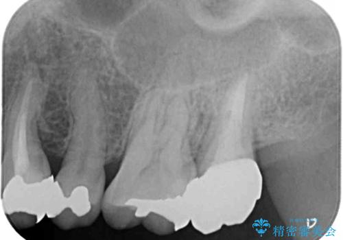 奥歯が痛い 歯の欠損と虫歯による奥歯の痛みを改善の治療後