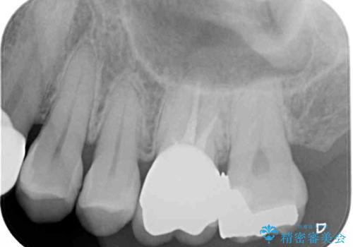 目立つ銀歯を白くしたい 銀歯からセラミックへの再補綴の治療後