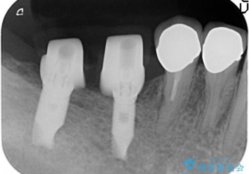 奥歯の欠損 インプラントによる機能回復の治療中