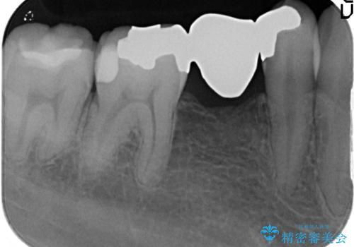 オールセラミッククラウン 銀歯のインレーブリッジの治療の治療前