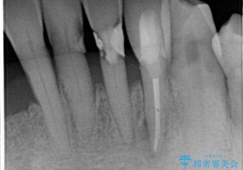下の前歯 虫歯で神経が死んでしまった 根管治療から被せものまでの治療後