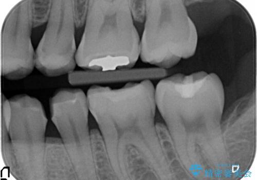 下顎小臼歯 セラミックインレー修復の治療中