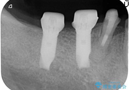 下顎大臼歯欠損 インプラントによる咬合機能回復の治療中