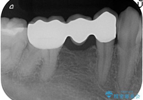 オールセラミッククラウン 銀歯のインレーブリッジの治療の治療後