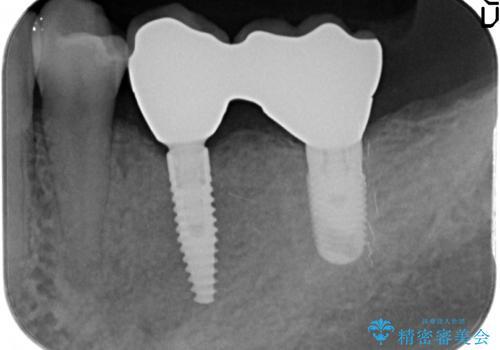 [歯の欠損] インプラントによる咬合回復の治療後