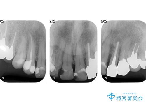 オールセラミッククラウン 前歯をきれいにの治療前