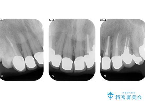 オールセラミッククラウン 前歯をきれいにの治療後