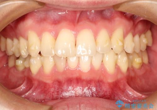インビザラインによる過蓋咬合・ガタつきの矯正治療の治療中